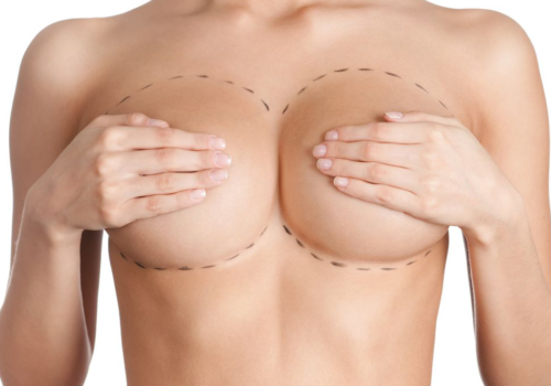 http://cadenmurray.com/wp-content/uploads/2017/07/breast-reconstruction-caden-murray-group-500x350.png
