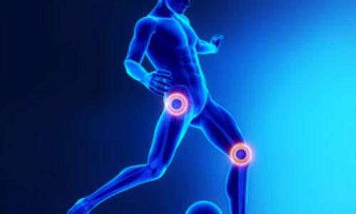 http://cadenmurray.com/wp-content/uploads/2017/07/orthopedics-500x300.jpg